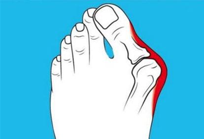 邱立东讲解:大脚骨了不疼可以不治疗吗