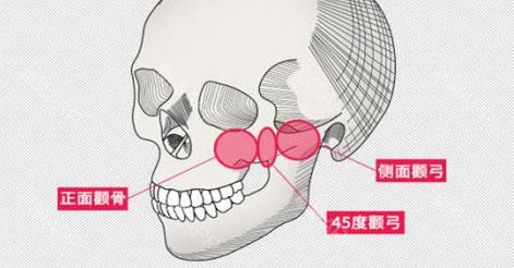 做颧骨内推手术会不会下垂