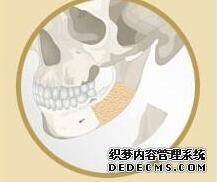 哪家医院下颌角做的好?