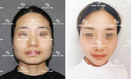长曲线下颌角手术适合那些人做