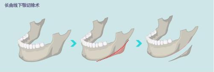 下颌角手术要怎么护理才好