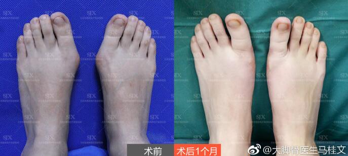 马桂文大脚骨案例