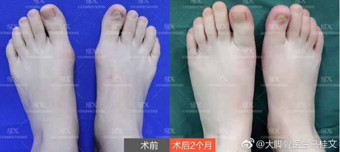 马桂文大脚骨矫正案例